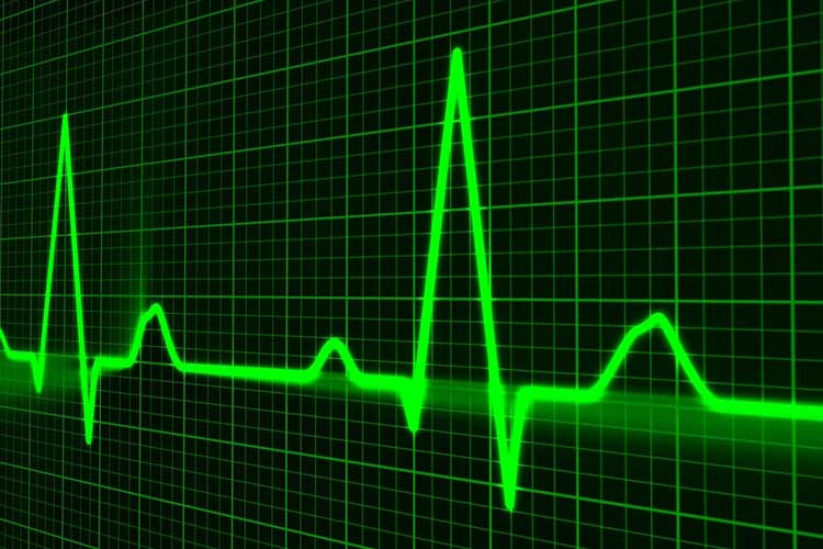 A screen from medical equipment showing a pulse